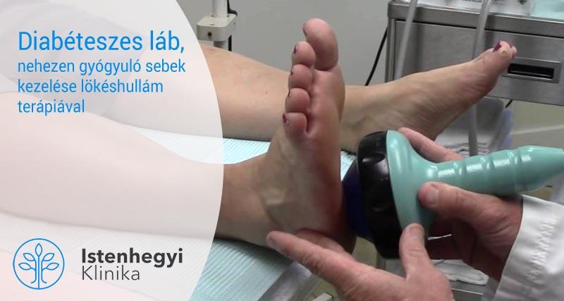 A lábujj gyulladása - Arthritis July