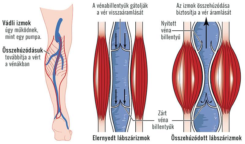 súlyos fájdalom a lábakban artrózisos kezeléssel artrózis hatékony kezelések