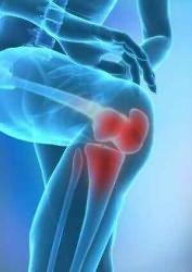 súlyos csípőfájdalom esés után