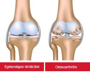 váll artrózis és kezelés