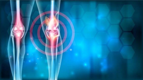 bevizesedett térd kezelése ízületi gyulladás a lábkezelő szereknél