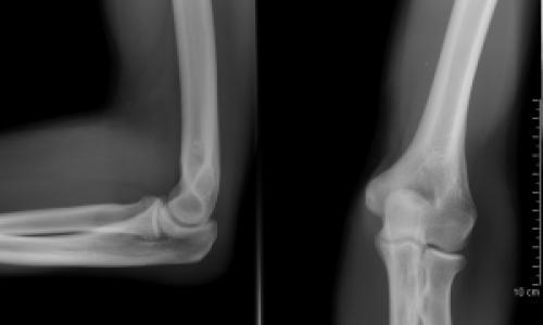 blokád térd deformáló artrózisával