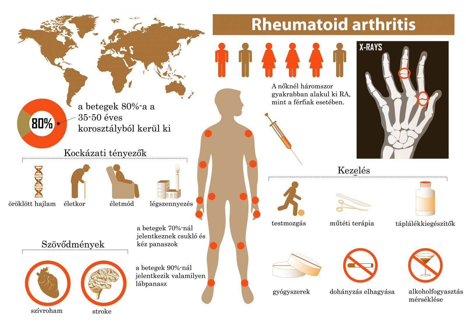 reumás ujj boka ligamentum károsodásának kezelése