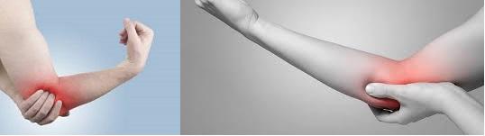 könyök sérülés gyógytorna hatékony kenőcsök a nyaki gerinc csontritkulásáért