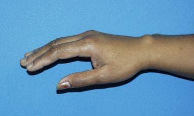 milyen tablettákat kell inni, ha fáj a csípőízület