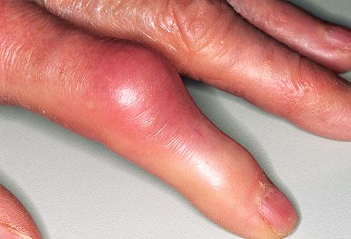 cikória és ízületi betegségek