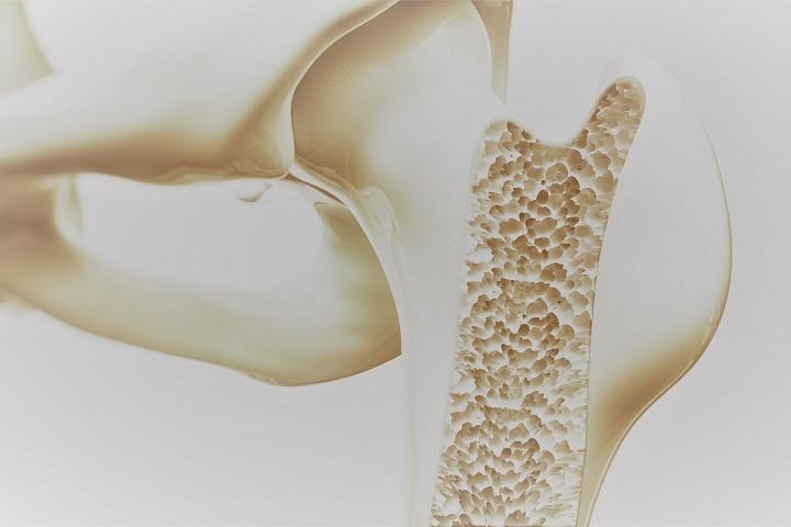 A csontritkulástünetei, kezelése