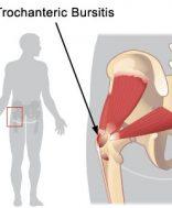 csípőízület kezelése és gyógytorna fájó ízületi fájdalom húzza az izmokat