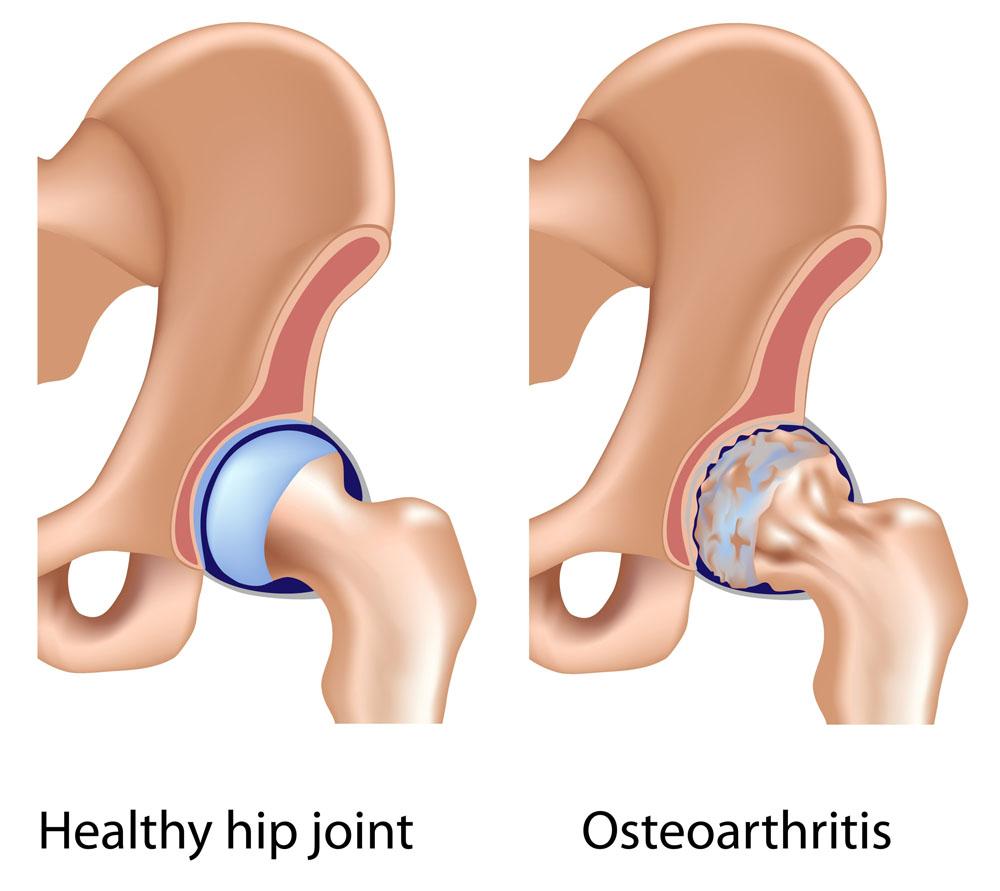 ujjak és lábujjak ízületei mi a kenőcs a csípőízület artrózisához