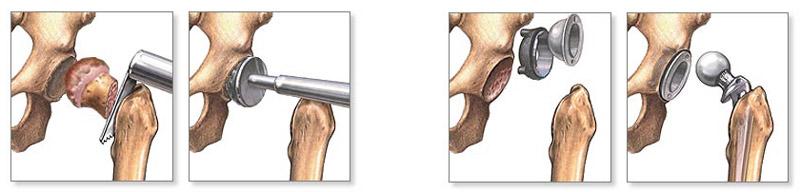 hosszú séta után a csípőízület fáj