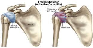 fájdalom és korlátozott ízületi mozgás az ujjak ízületi áttekintése