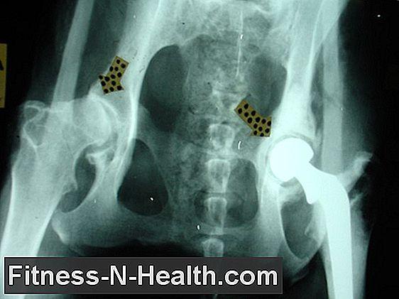 coxo artrosis kezelés