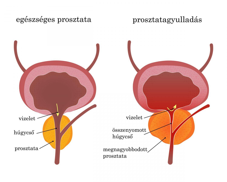 konovalov s.c gerinc és ízületek betegségei rheumatoid arthrosis gyógyszeres kezelés