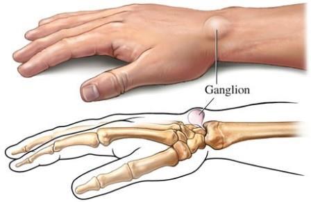 ropogás a csípőízületben fájdalommal