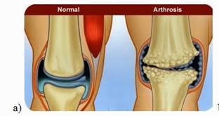 a térd artrózisával járás előnyei