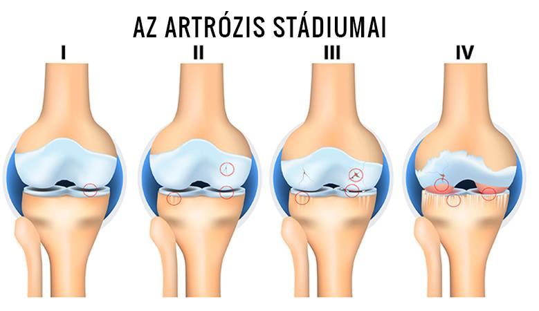 artrózis tünetei és a térd kezelése