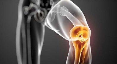 a térdízületi betegségről szól metacarpophalangeal joint osteoarthritis icd 10