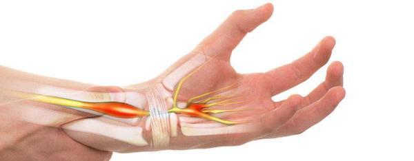 az ízület oldalsó belső ligamentumának trauma váll fájdalom kattintások