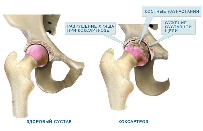 csípőízületek osteoarthrosisának kezelése