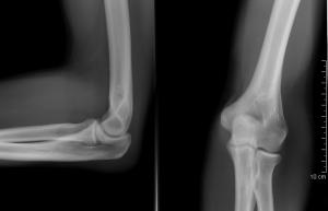 a nagy lábujj ízületének bursitis kezelése nanoplaszt ízületi kezelés