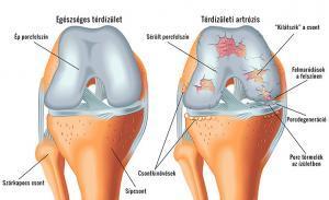 a bokaízület deformáló artrózisának kezelése táplálkozás a csípőízület fájdalmáért