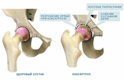 a csípőízületek coxarthrosisának kezelése 1-2 fokkal