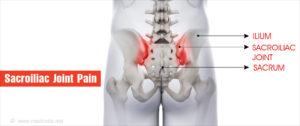 medencei ízületi fájdalom
