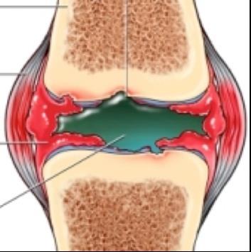 mi a csípőízület második fokának artrózisa