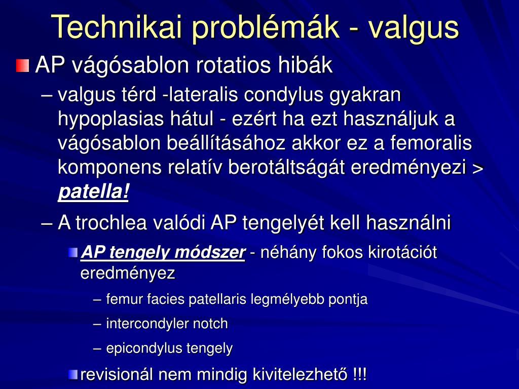 Térd artroszkópia   erbenagrar.hu – Egészségoldal   erbenagrar.hu