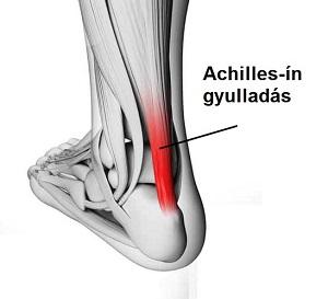 A sarok, a boka és a lábfej is fájhat Achilles-ín gyulladás miatt
