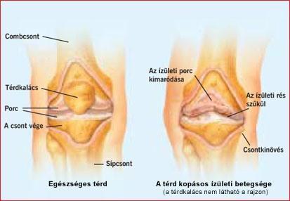 a karok és a lábak ízületeinek betegség jelei hátfájás és ízületek fájdalma