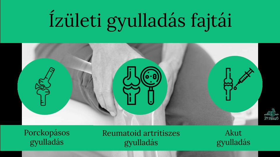 enyhíti az ízületi gyulladást ízületi gyulladást