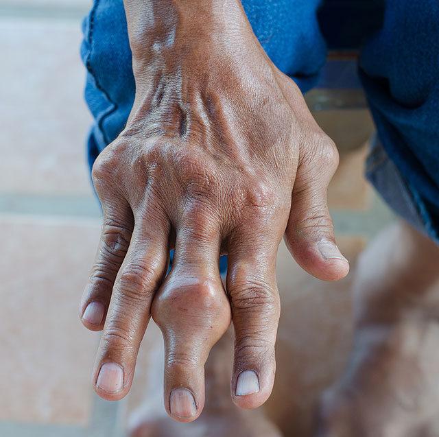 fájó középső ujj az ízületben