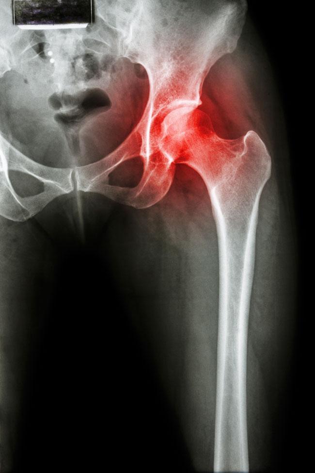 súlyos térdfájdalom, ropogással lenmagolaj a térd artrózisához