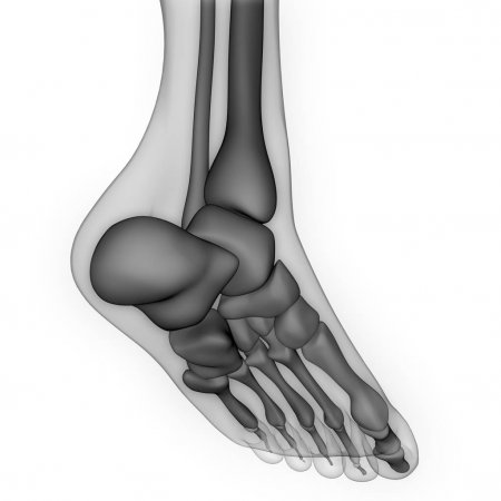 ízületi kezelés soligalichban saki sárkezelés artrózis esetén