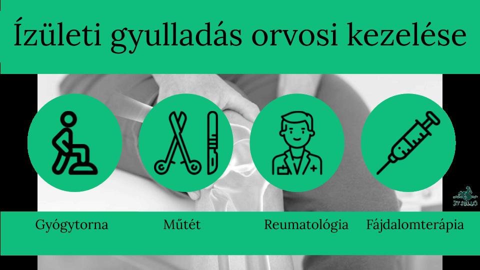 glükózamin-kondroitin arthra vélemények