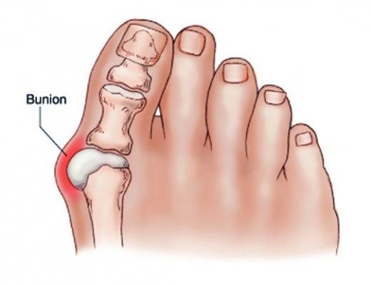 fáj a bal kéz középső ujján lévő ízület a lábujjak ízületi betegsége