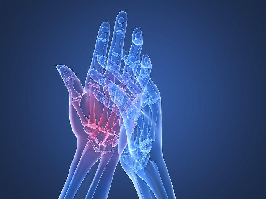 fájdalom okai a kéz vállizületeiben