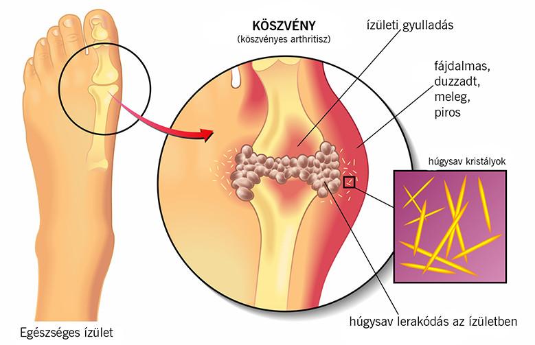A metatarsophalangealis ízületek artrózisa - Köszvény