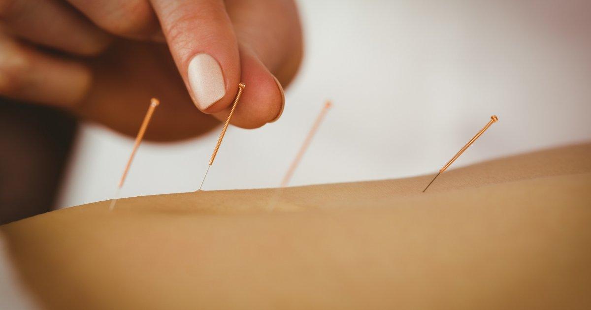 Ízületi gyulladás? Így segít az akupunktúra
