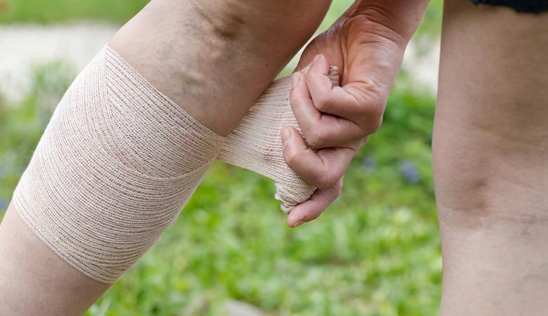 a csípőízület fájdalma ad a lábnak