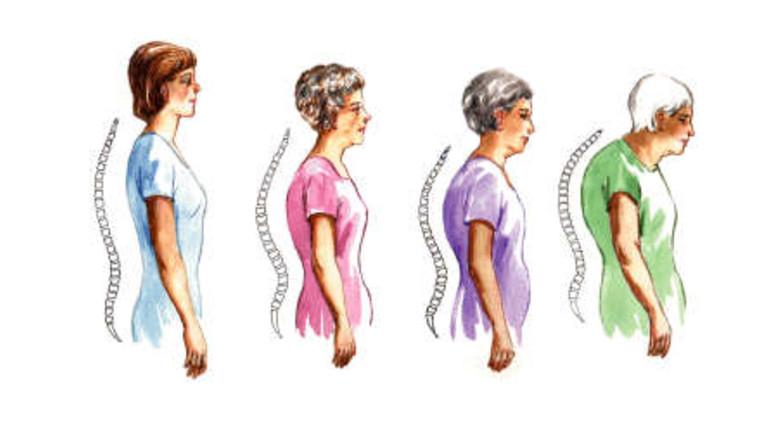 kezelési torna térd artrózissal rheumatoid arthritis kéz tünetei