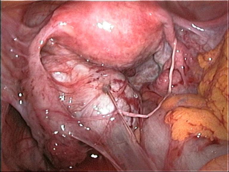 csípőfájás csípés ízületben ülő fájdalom és folyás