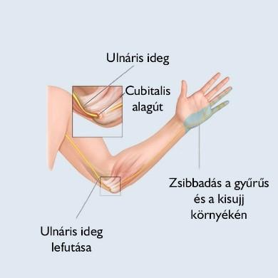 könyök fájdalom kéz zsibbadás artrózis, amely deformálja a könyökízületet 1 fokos kezelés