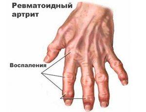 kúpok az ujjak ízületein, hogyan kell kezelni a gyógyszer lábujjai ízületeinek gyulladása
