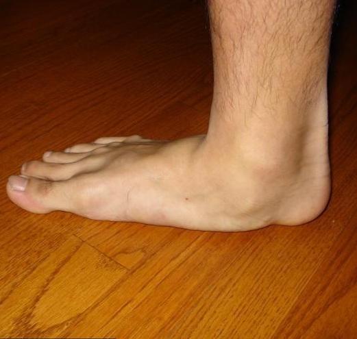 lapos lábak és az 1. fokú kezelés ízületi gyulladása