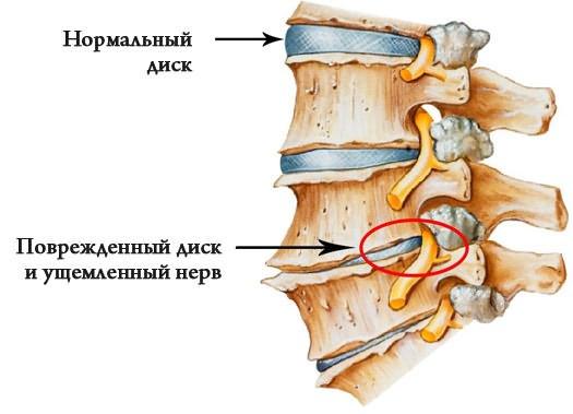 shevchenko ízületek kezelése