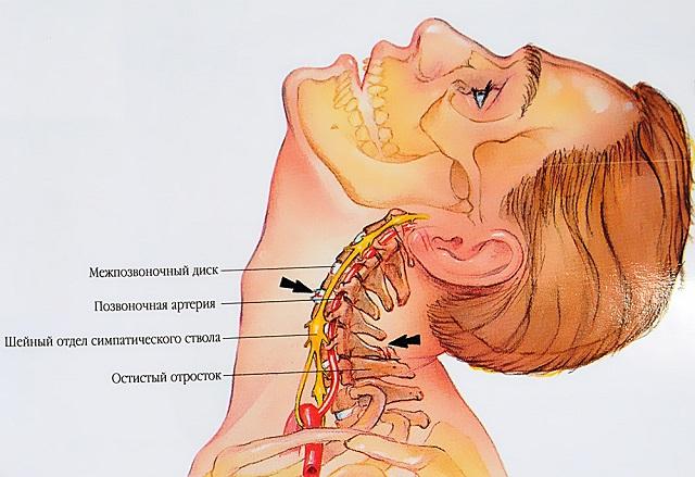 gyógyszer az osteochondrosis kurpatov égő fájdalom a könyökben