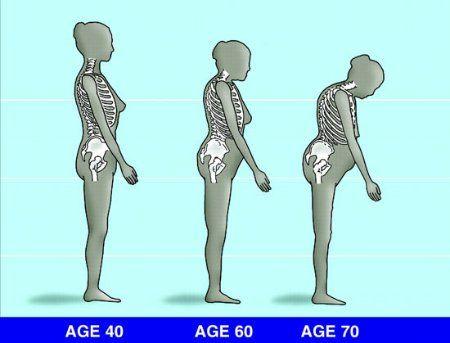 magnézium az ízületi kezelés során kenőcs az alkar osteochondrozisához