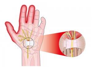 mi a fáj a kéz ízületei gerinc és csípő fájdalom